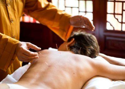 klinika-zdrowia-holistycznego-yangtorp-akupunktura